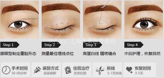 上海割雙眼皮醫院_權威好醫院