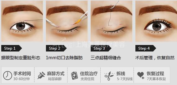 韩式三点定位双眼皮:就是在眼皮上制作三个长度仅有2—3毫米的