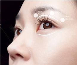 上海割双眼皮会有后遗症吗