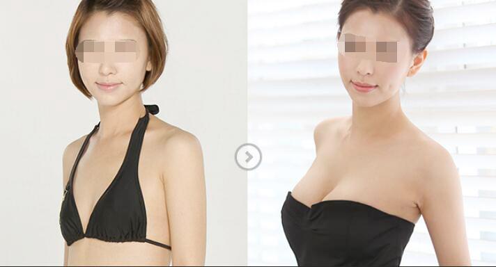 自体脂肪隆胸的危害有哪些
