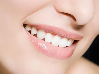 上海冷光牙齿美白有哪些优势