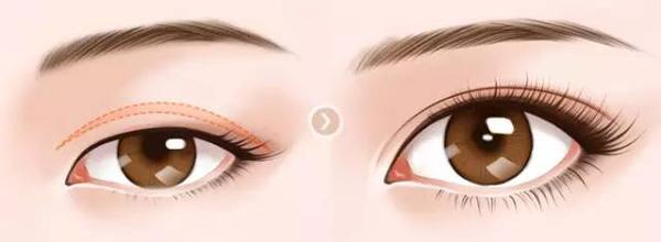 韩式割双眼皮过程