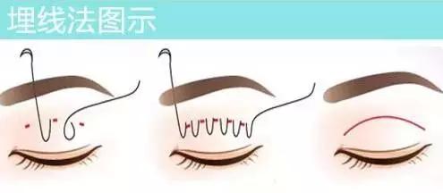 上海埋线双眼皮能保持几年?