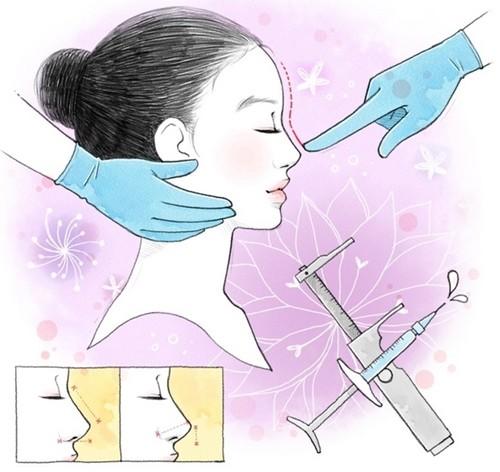 上海玻尿酸注射隆鼻后会变形吗?