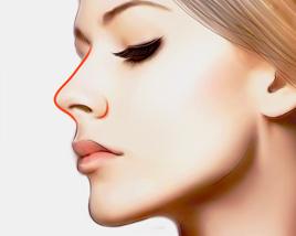 上海哪种隆鼻方法恢复时间较短?