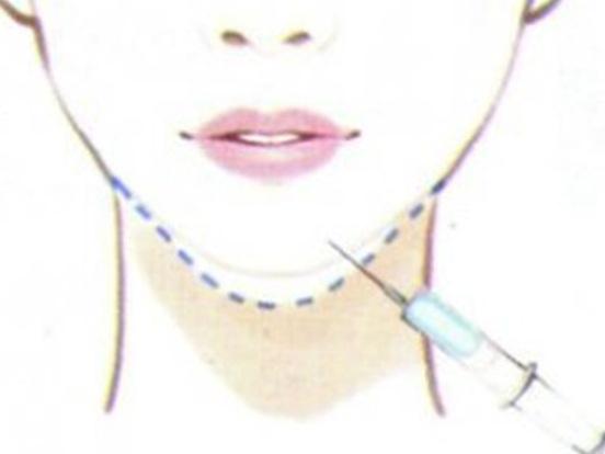 玻尿酸垫下巴效果好吗?