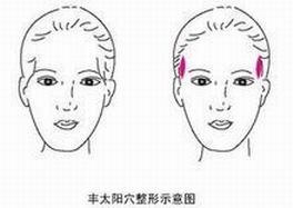 【上海】玻尿酸丰太阳穴有什么优势?