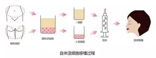 自体活细胞移植过程