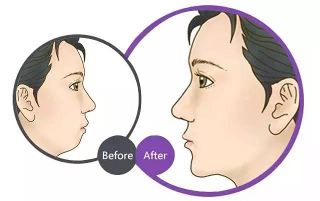 玻尿酸隆下巴前后对比图