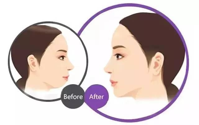 瘦脸针加玻尿酸组合使用前后效果对比