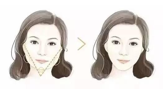 瘦脸针加玻尿酸组合使用前后效果正面对比
