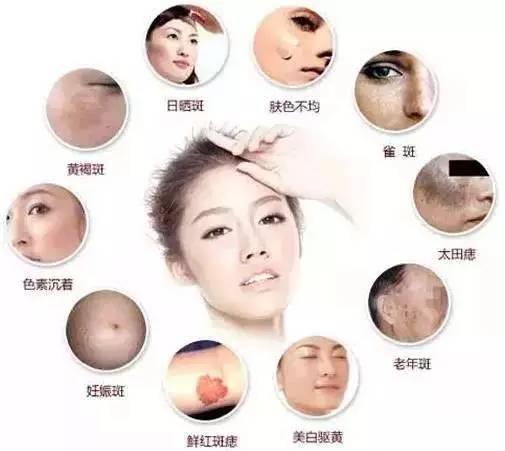 人体常见的斑点皮肤色素等问题图