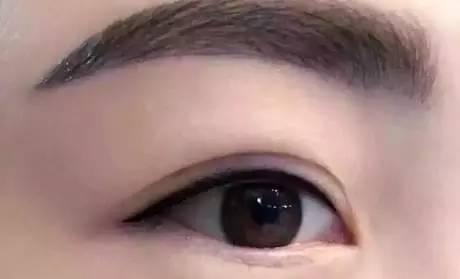双眼皮眼睛