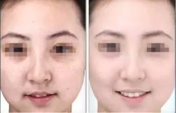 激光祛斑治疗前后对比图正面