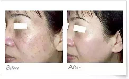激光祛斑治疗前后对比图侧面