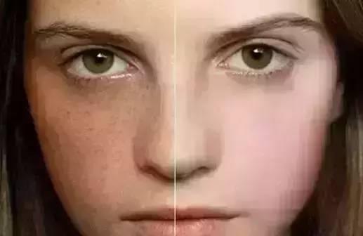 激光祛斑对比图
