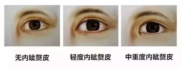 上海美莱三种内眼角图