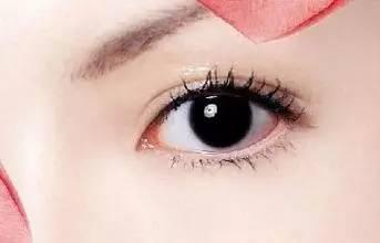 上海美莱适中双眼皮