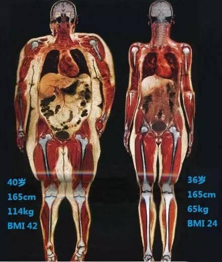 上海美莱胖与瘦身材脂肪对比