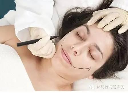 上海美莱如何填充苹果肌