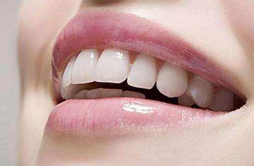 上海美莱洁白牙齿