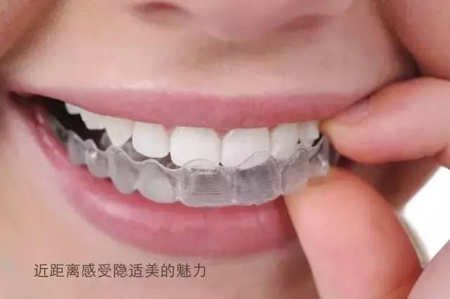 上海美莱隐适美牙齿矫正