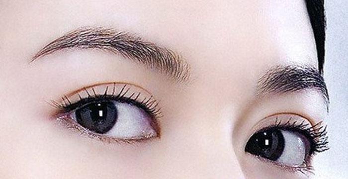 上海美莱双眼皮