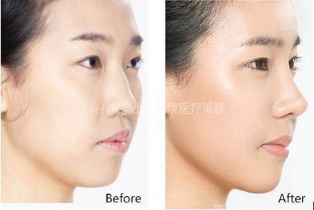 上海美莱隆鼻手术