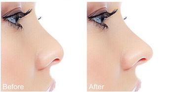 注射隆鼻能保持多久