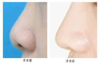 上海鼻翼缩小