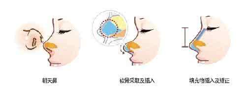 上海朝天鼻矫正要多少钱