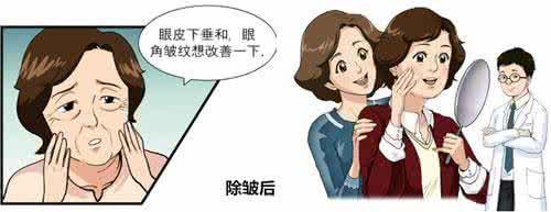 上海保妥适玻尿酸除皱多少钱