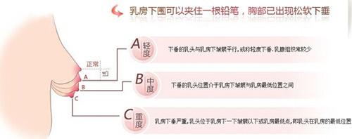 上海做乳房下垂矫正术多少钱