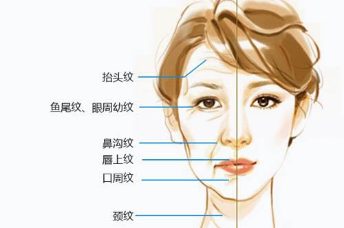 上海瑞兰玻尿酸能维持多久