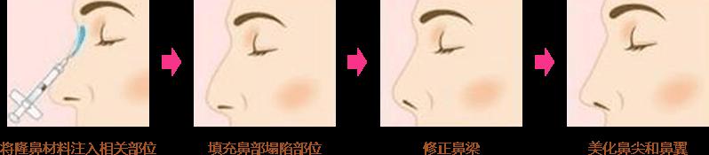 上海注射隆鼻效果好吗