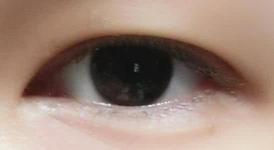 内双眼皮怎么修复