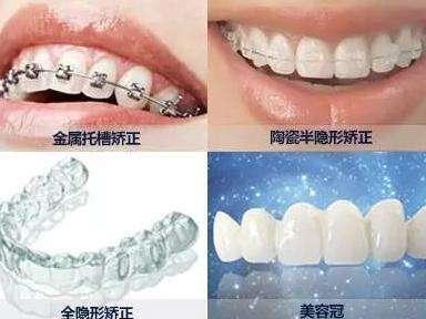 成人选择牙齿矫正