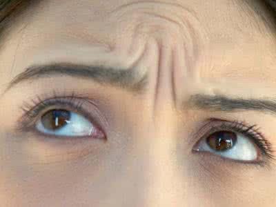 额头下方皱纹是怎么产生的