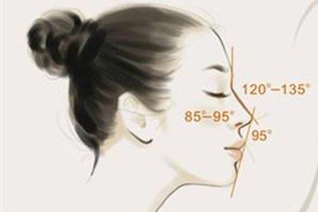 韩式耳软骨隆鼻效果