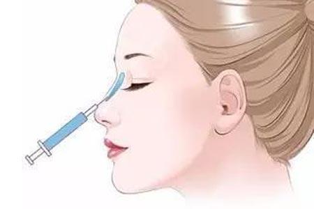 隆鼻手术多少钱