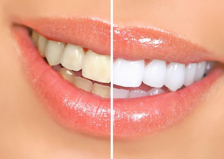 牙齿美白有哪些要注意的